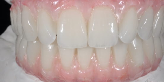 Implant Supported Provisional Restorations