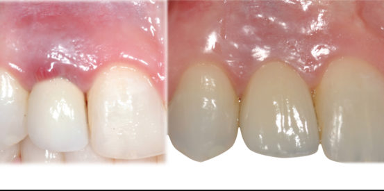 Natural anterior implant crowns