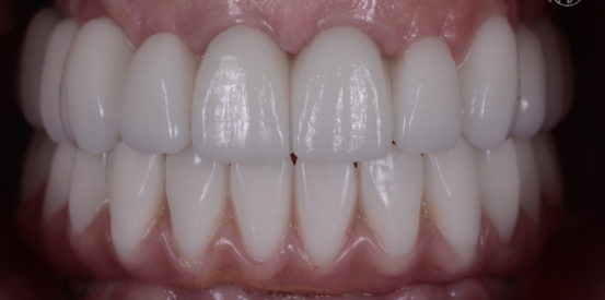 Upper Tooth Only All On 4 in Zirconia