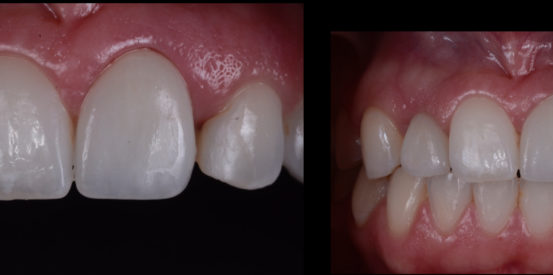Zirconia Implant crowns with natural esthetics