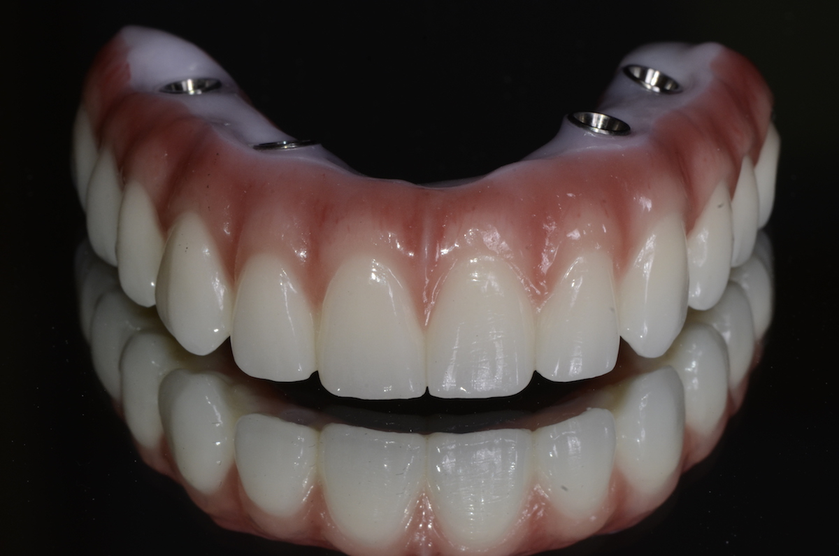 Zirconia on implant 1